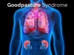 ગુડપાસ્ટર સિન્ડ્રોમ જીપીએસ ના કારણો, લક્ષણો, અને સારવાર