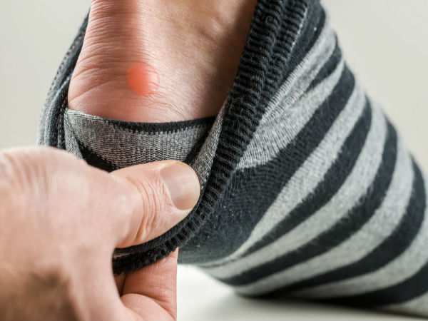 ways to treat foot blisters
