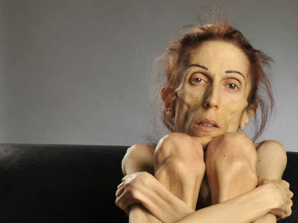 woman who suffered from anorexia