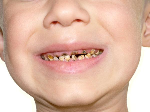 દાંતમાં કીડા થાય ત્યારે કરો આ ઉપાય, દાંતની કેવિટીને કેવી રીતે ઠીક કરશો