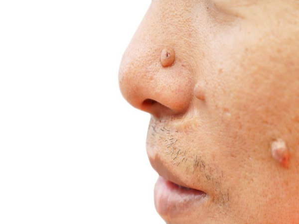 Natural Remedy Treat Moles On Face Body