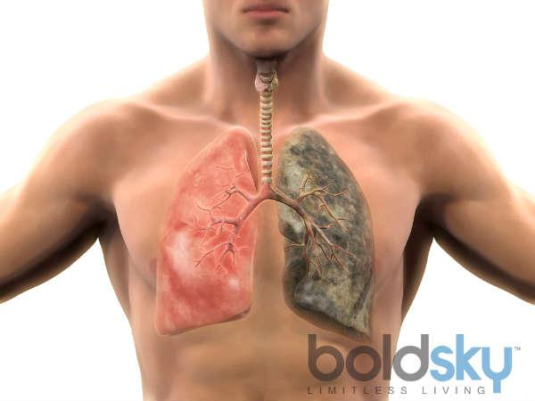 લંગ્સ કેન્સર ના 8 પ્રારંભિક લક્ષણો :માથાનો દુખાવો