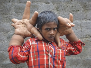 Kaleem Facing Trouble From His Two Big Hand See Picture