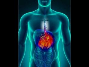 Simple Changes Prevent Acidity Heart Burn