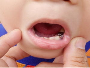 If You Have This Filling Your Tooth Remove It Immediately