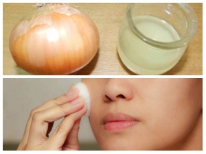 Surprising Benefits Onions Pyaz Skin