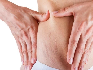 How Remove Stretch Marks 4 Effective Natural Remedies