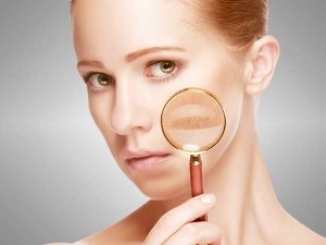 Best Natural Ingredients To Fade Away Dark Spots