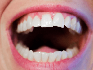 How Dental Health Affects Your Overall Health