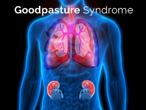 Goodpasture Syndrome Gps Causes Symptoms Diagnosis